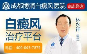 白癜风病发的根本原因有哪些